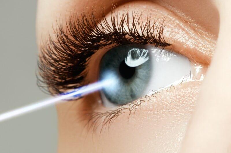 Všetko, čo by ste mali vedieť o operácii excimerovým laserom